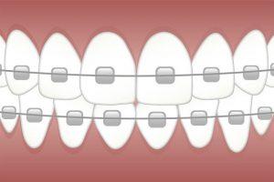 ortodonti tedavisinde kullanılan diş teli ve braketten oluşan bir aparey.