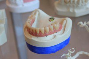 protetik diş tedavisi veya halk arasında bilinen adıyla protez diş